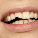 dental care for broken teeth in rochester ny