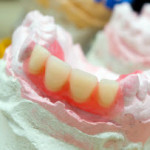same day denture repairs in rochester ny
